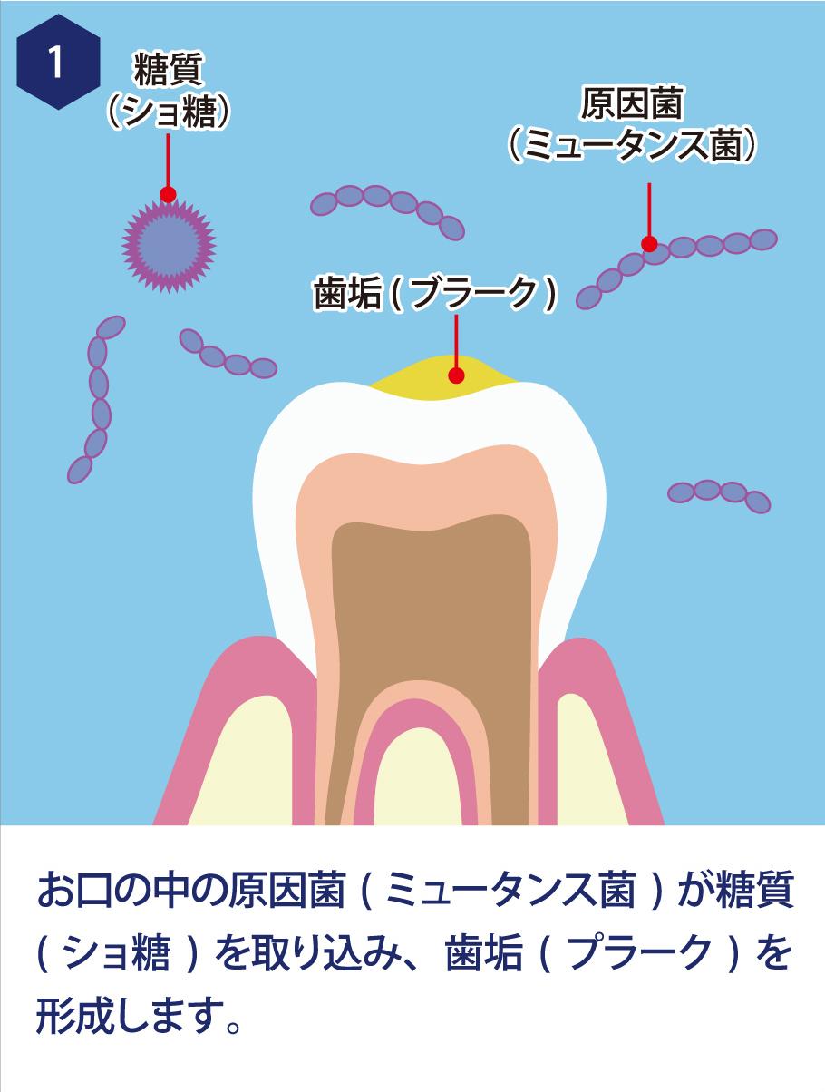1. お口の中の原因菌(ミュータンス菌)が糖質(ショ糖)を取り込み、歯垢(プラーク)を形成します。