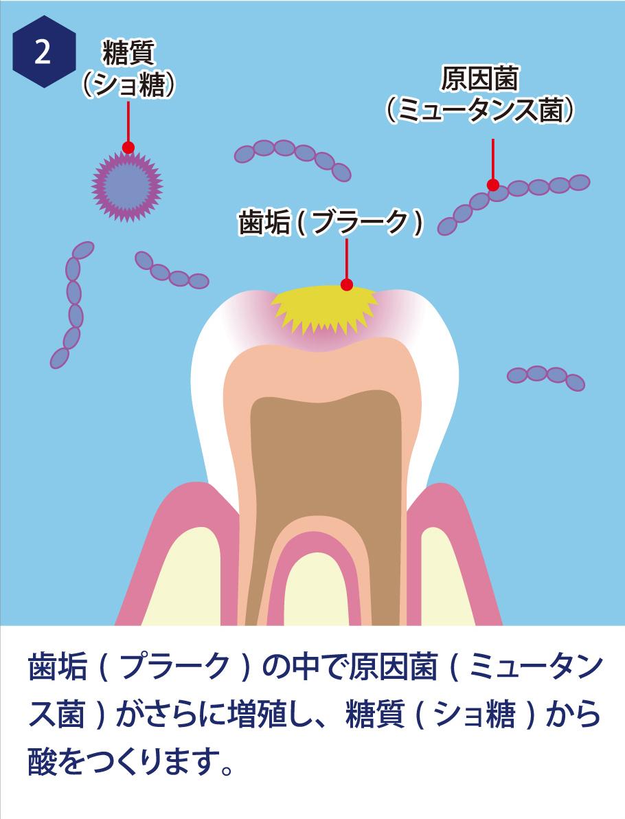2. 歯垢(プラーク)の中で原因菌(ミュータンス菌)がさらに増殖し、糖質(ショ糖)から酸をつくります。