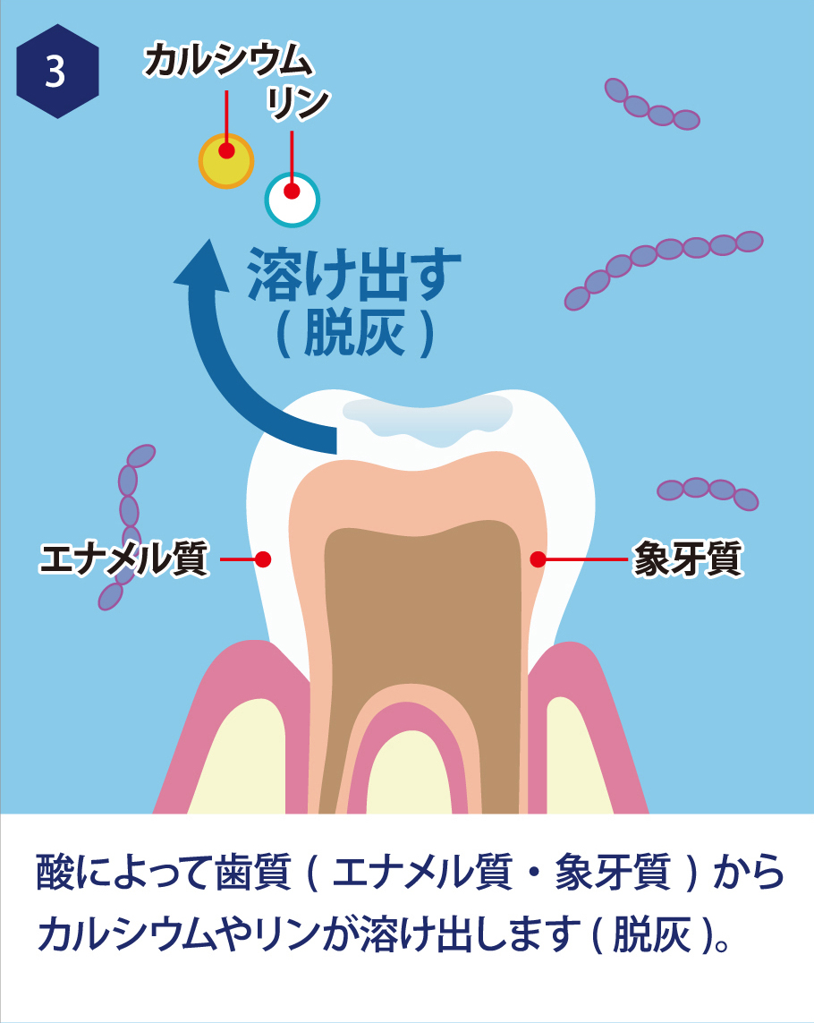 3. 酸によって歯質(エナメル質・象牙質)からカルシウムやリンが溶け出します。(脱灰)