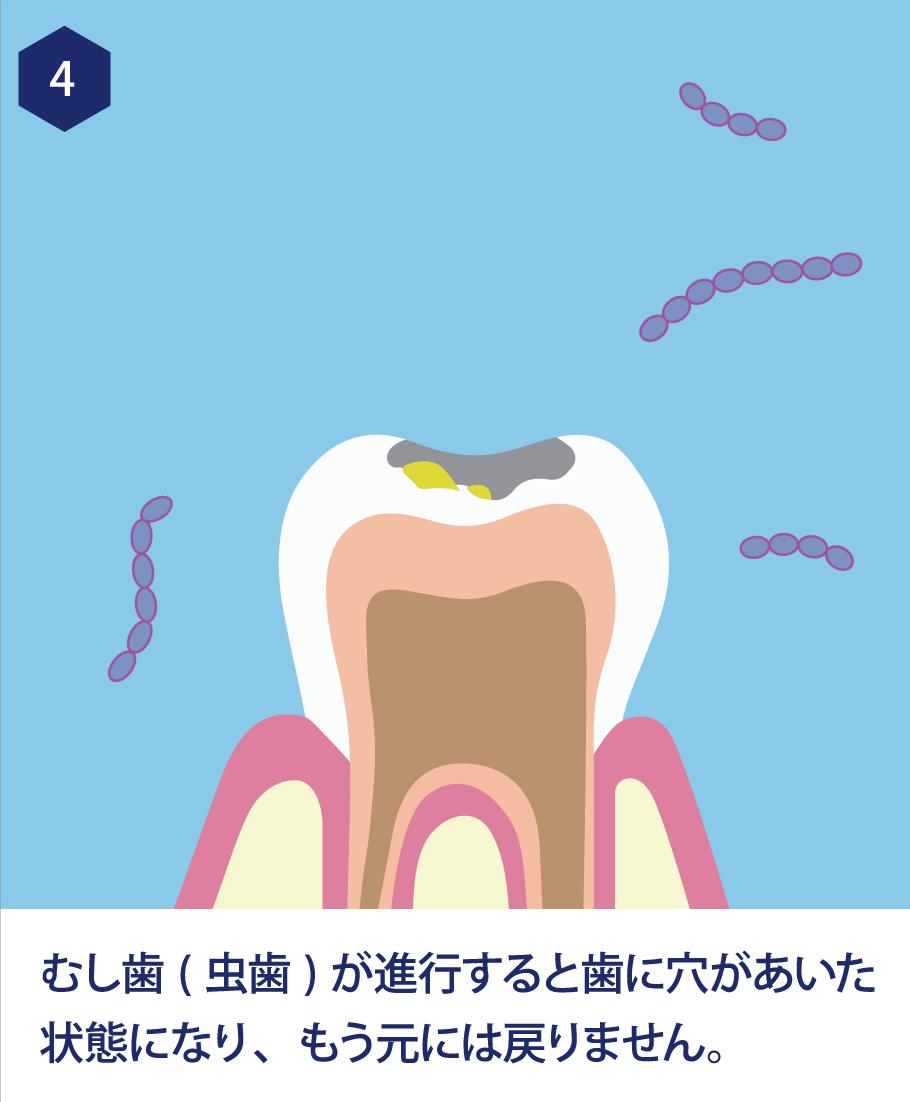 4.虫歯が進行すると歯に穴があいた状態になり、もう元には戻りません。